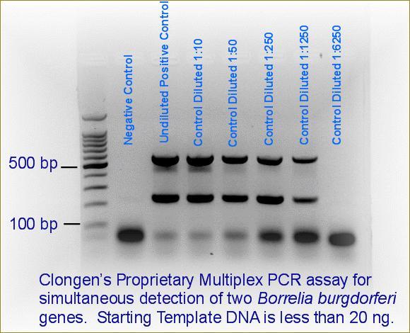 Lyme Disease (Borrelia burgdorferi) – PCR – Human Whole Blood